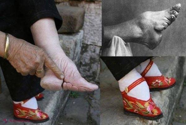 Bandaj pentru picioare